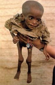 0desnutricion-en-africa