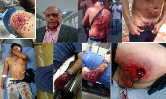 manifestacion venezuela represion brutal